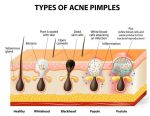 types-of-acne-pimples
